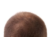 La fine su di uomo la testa. immagine stock