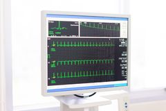La fréquence cardiaque de contrôle de docteur et l'impulsion du patient en exécutant l'essai photo libre de droits