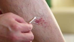 La herida en la pierna del hombre almacen de video