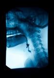 La imagen de gastrointestinal superior de la radiografía (UGI), Esophagram Imagen de archivo libre de regalías