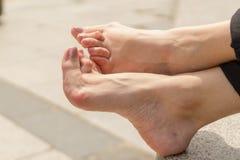 La jeune femme ayant le rhumatisme articulaire prend un repos se reposant sur un banc à un parc Des mains et les jambes sont défo photographie stock