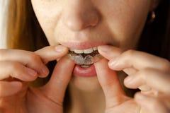 La jeune femme met le dispositif d'alignement transparent pour le traitement dentaire photographie stock