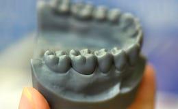 La mâchoire inférieure d'un homme, créée sur une imprimante 3d d'un matériel de photopolymer Image stock