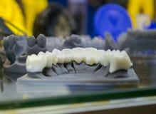 La mâchoire inférieure d'un homme, créée sur une imprimante 3d d'un matériel de photopolymer Photos stock