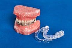 La mâchoire ou les dents humaine modèlent avec les bagues dentaires de câble par métal photos stock