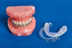 La mâchoire ou les dents humaine modèlent avec les bagues dentaires de câble par métal photographie stock
