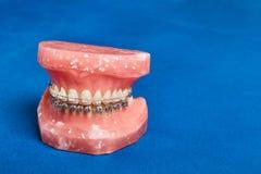 La mâchoire ou les dents humaine modèlent avec les bagues dentaires de câble par métal image libre de droits