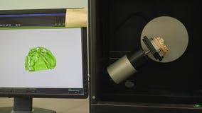 La macchina della radiologia di Dantist esplora la mandibola artificiale nell'illuminazione e mostra sul monitor del computer video d archivio