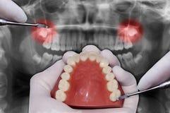 La main de dentiste simule la chirurgie dentaire images libres de droits