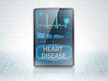 La maladie cardio-vasculaire Photo stock