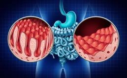 La maladie coeliaque d'intestin illustration stock