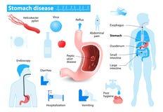 la maladie d'estomac Images libres de droits