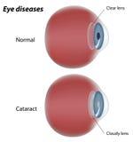 La maladie d'oeil - cataracte Photographie stock libre de droits