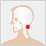 La maladie de la tête et du cou illustration de vecteur