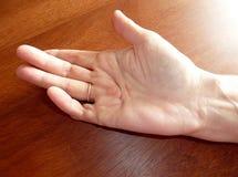 La maladie de main (Dupuytren) Photographie stock libre de droits