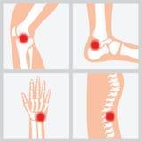 La maladie des articulations et des os illustration de vecteur