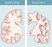 La maladie du ` s d'Alzheimer Photos libres de droits