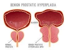 La maladie Infographic de prostate illustration stock