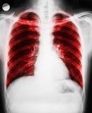 La maladie pulmonaire Photo libre de droits