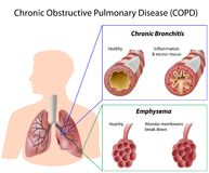La maladie pulmonaire obstructive continuelle Images stock