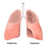 La maladie pulmonaire obstructive continuelle illustration libre de droits