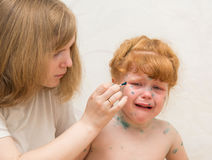 la mamá de la muchacha lubrica la curación para la varicela Fotografía de archivo