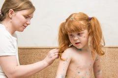 la mamá de la muchacha lubrica la curación para la varicela Foto de archivo libre de regalías