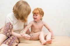la mamá de la muchacha lubrica la curación para la varicela Imagenes de archivo