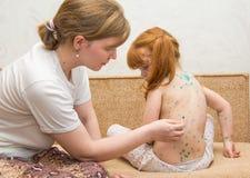 la mamá de la muchacha lubrica la curación para la varicela Fotos de archivo