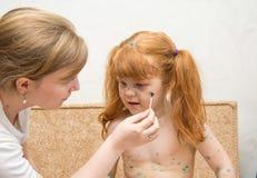 la mamá de la muchacha lubrica la curación para la varicela Fotografía de archivo libre de regalías