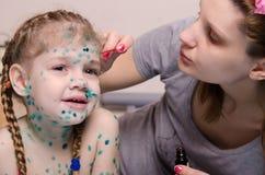 La mamma manca l'eruzione dello zelenkoj sul fronte del bambino con la varicella Fotografie Stock Libere da Diritti
