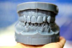La mandibola superiore e più bassa di un uomo ha stampato su una stampante 3d di photopolymer Fotografie Stock