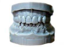 La mandibola superiore e più bassa di un uomo ha stampato su una stampante 3d di photopolymer Fotografie Stock Libere da Diritti