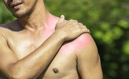 La mano agarra el hombro que inflamaci?n de lesi?n de los deportes fotografía de archivo