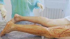 La mano alta vicina dell'infermiere disinfetta la gamba paziente prima della stanza in funzione della chirurgia video d archivio