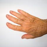 La mano di signora più anziana con l'artrite fotografia stock libera da diritti