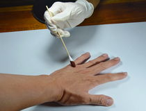 La mano en guante de goma médico aplica un cierto remedio a la herida Foto de archivo
