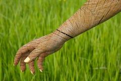 La mano femenina agrietada imagen de archivo