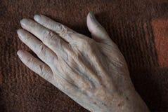 La mano marchitada de un paciente que miente en un fondo de blan viejo Fotos de archivo libres de regalías