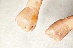 La mirada abajo en un par de manos, uno de los cuales es hinchado debido a una picadura del avisp?n foto de archivo libre de regalías
