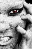 La mirada asustadiza de una mujer con la piel seca y un ojo rojo imagen de archivo