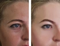 La muchacha arruga ojos antes y después de tratamientos fotos de archivo libres de regalías