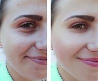La muchacha hermosa arruga, retiro del acné en la cara antes y después de procedimientos foto de archivo libre de regalías
