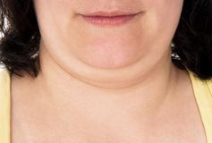 La muchacha muestra apagado su barbilla grande Imagen de archivo libre de regalías