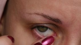 La muchacha pone la medicina en el ojo Tratamiento del ojo Conjuntivitis y mucosa Cierre - para arriba del ojo femenino almacen de video