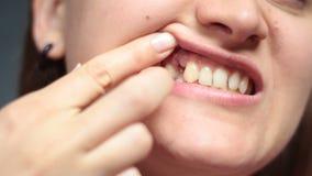 La muchacha que señala con los fingeres hiere después de la extracción del diente almacen de metraje de vídeo