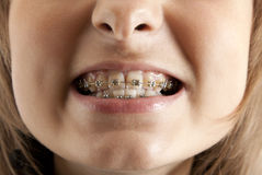 La muchacha sonríe con el corchete en los dientes Imagen de archivo libre de regalías