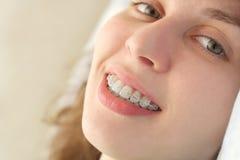 La muchacha sonríe con las paréntesis Imágenes de archivo libres de regalías