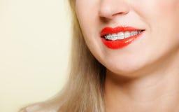 La muchacha sonriente con los dientes de la pieza de la cara de los apoyos se endereza, higiene del diente Imagen de archivo libre de regalías