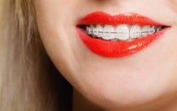 La muchacha sonriente con los dientes de la pieza de la cara de los apoyos se endereza, higiene del diente Fotografía de archivo